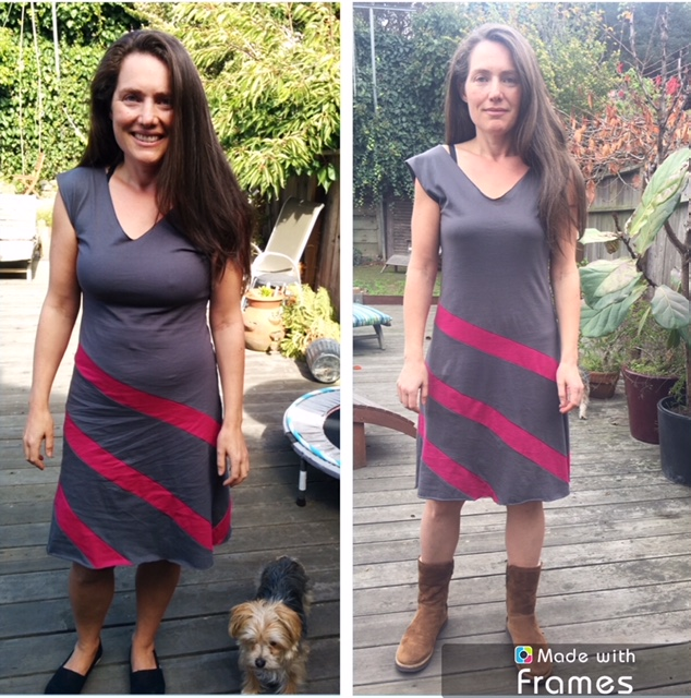 My 1 year SIBO update & health transformation